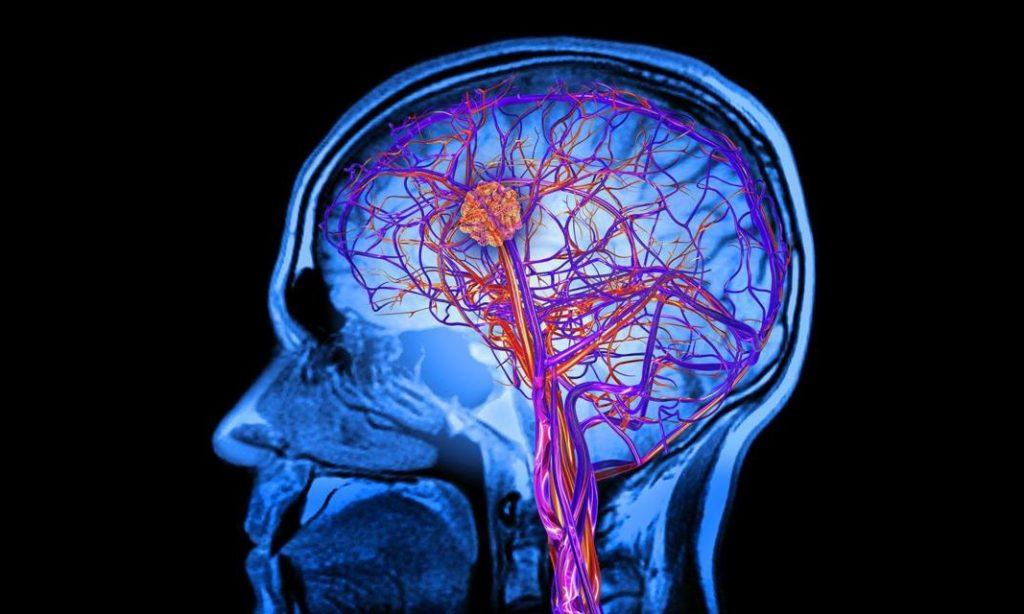 Η γήρανση του εγκεφάλου ίσως ξεκινά νωρίτερα απ' ό,τι νομίζουμε